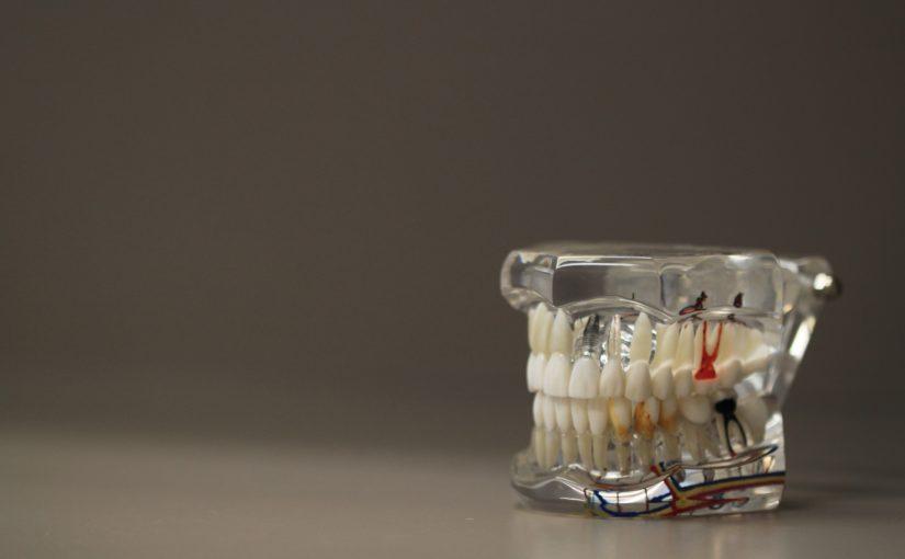 Zły sposób odżywiania się to większe ubytki w jamie ustnej a również ich zgubę